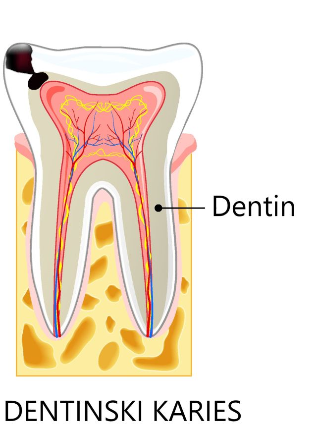 Dentinski karies