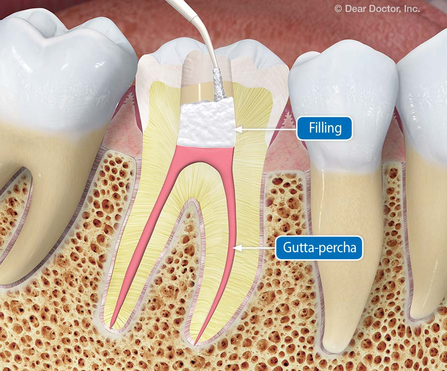 Zdravljen zob