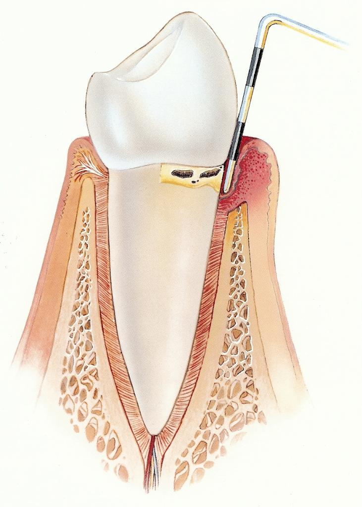 Začetna parodontalna bolezen
