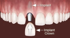 Implantat nadomešča en zob
