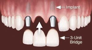 implantatni zobni mostiček