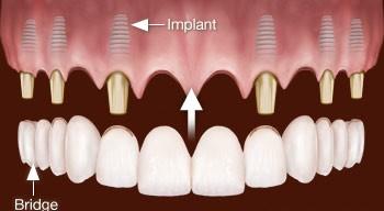 Nadomeščanje vseh zob z implantati