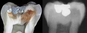 karies, ki ga lahko odkrije le zobozdravnik