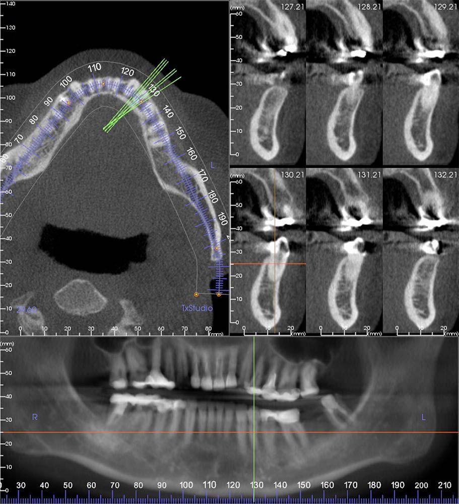 Dentalni CT