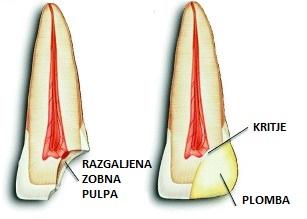 Kritje zobne pulpe zobni živec