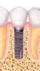 Zobni imlantat z zobno krono - prevleko