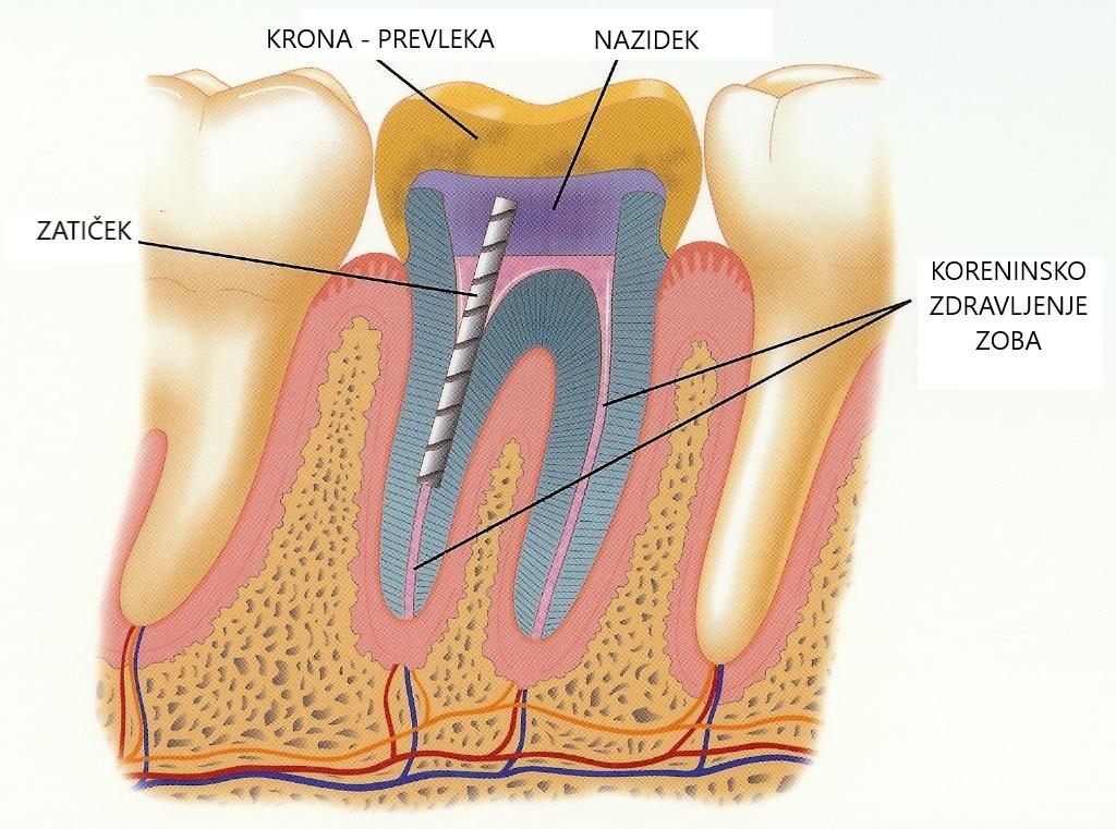 zatiček nazidek štift zobna prevleka zobna krona