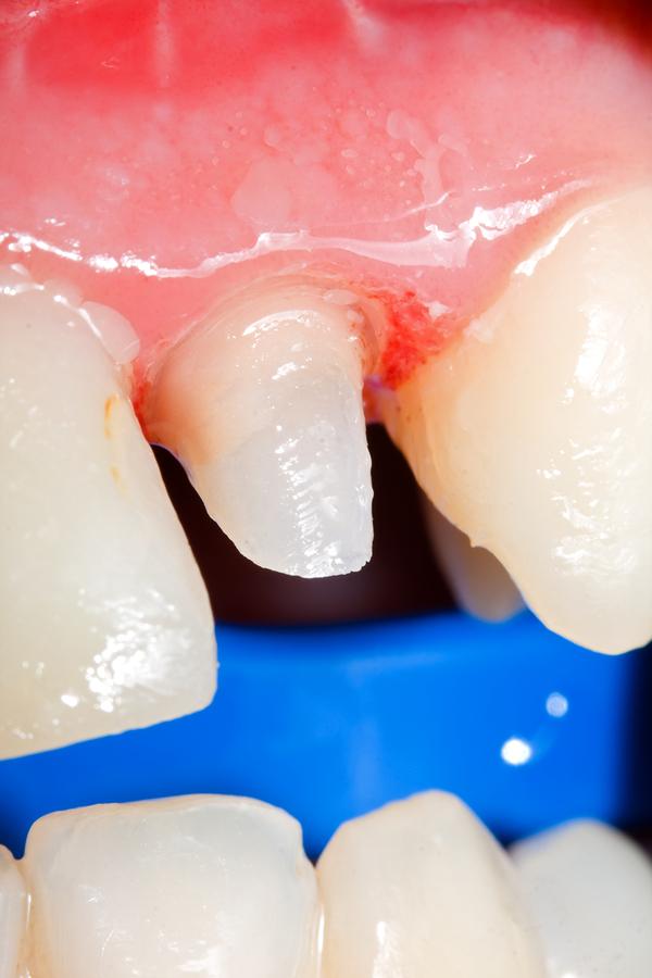 Zobni zatiček z nazidkom izdelan, priptavljen za odtis za prevleko